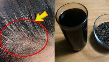 10 cách trị tóc bạc sớm cực hay từ tự nhiên