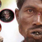 10 căn bệnh đáng sợ vô phương cứu chữa chỉ nhìn qua cũng đủ rùng mình