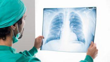 5 dấu hiệu tố cáo bạn đã mắc ung thư phổi giai đoạn đầu