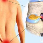 8 cách phòng bệnh thoái hóa đĩa đệm đơn giản