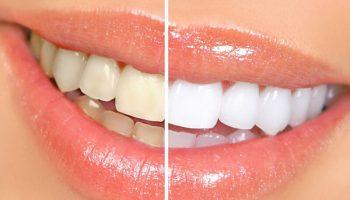 9 cách làm trắng răng rẻ tiền ngay tại nhà