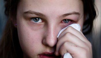 Cách phòng và chữa bệnh đau mắt đỏ đúng cách