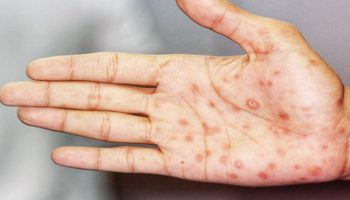 Chẩn đoán bệnh giang mai - Chẩn đoán và xét nghiệm giang mai