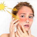Hiểu về chống nắng để bảo vệ da hiệu quả