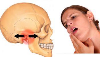 Những liệu pháp tại nhà đặc biệt hiệu quả với bệnh rối loạn khớp thái dương hàm
