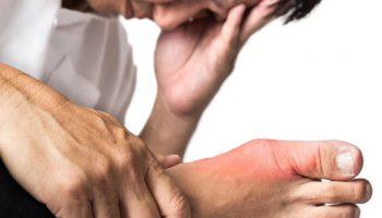 Phòng tránh viêm khớp tái phát do bệnh gút - Điều trị và chăm sóc bệnh gút