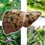 Top 8 cây thuốc chữa gan nhiễm mỡ mọc quanh nhà bạn