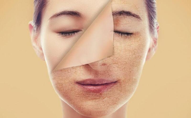 Làn da khô thường có bề mặt thô ráp, dễ bong tróc